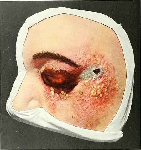 опасное заболевание