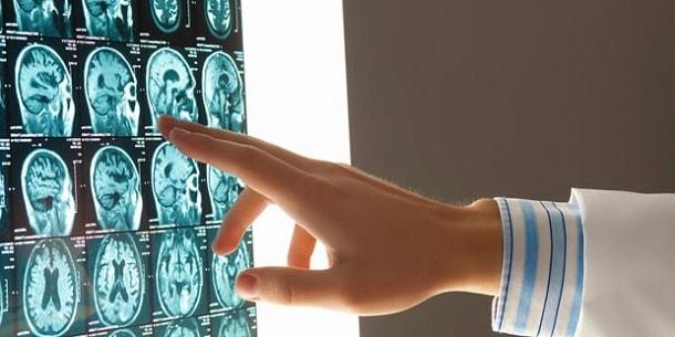 Изображение - Внутричерепное давление у ребенка 15 лет sostoyanie-golovnogo-mozga