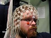 Энцефалограмма головного мозга