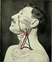Почему болит в основании черепа и затылке